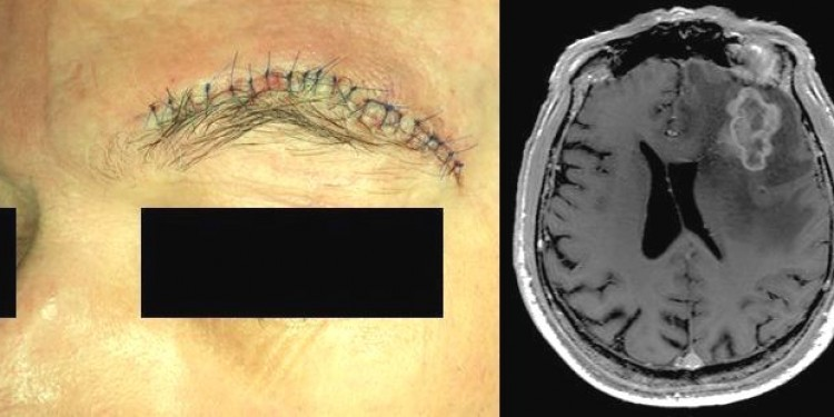 A sutured incision in a patient's eyebrow indicates the point where the neurosurgeon's instruments entered the skull to remove a tumour. In the radiological image, the lighter area near the top right shows the area from which the tumour was removed.